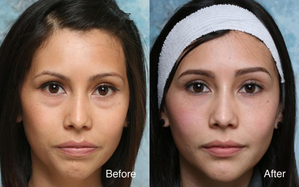 Eye Bag Removal Surgery In Singapore ⋆ NinaTay com
