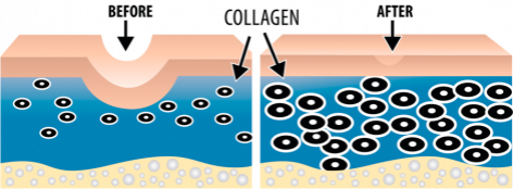 collagen-treatment before and after