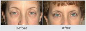 older woman before & after ptosis surgery